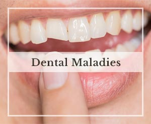 Dental Maladies