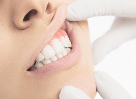 gum restoration
